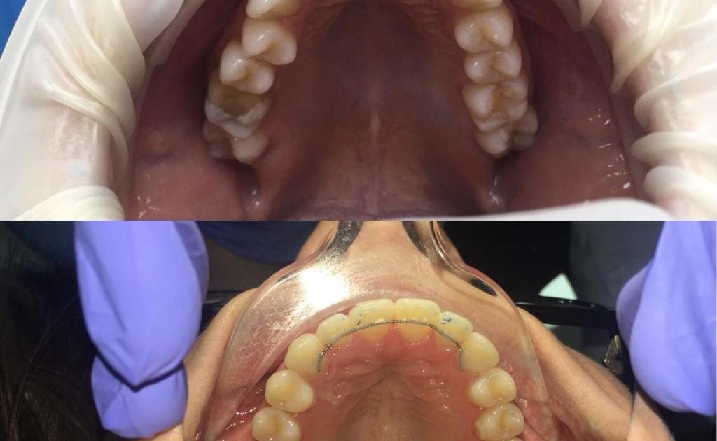 Ортодонтическое лечение на брекетах