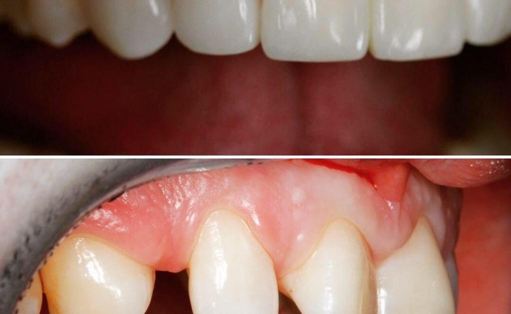 Художественная реставрация передних зубов, зона улыбки